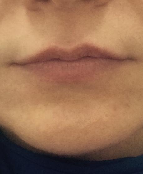 Увеличение губ в москве