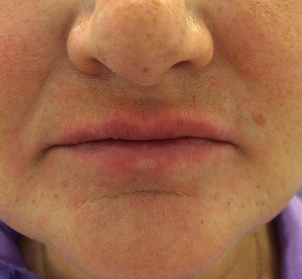 Коррекция губ в москве