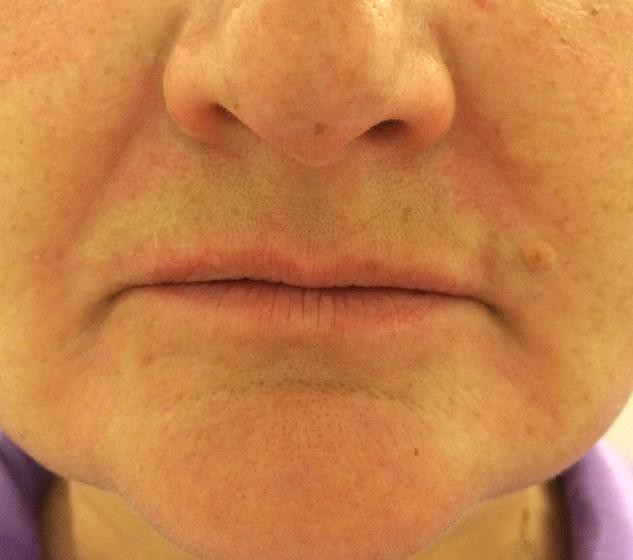 Коррекция губ москва